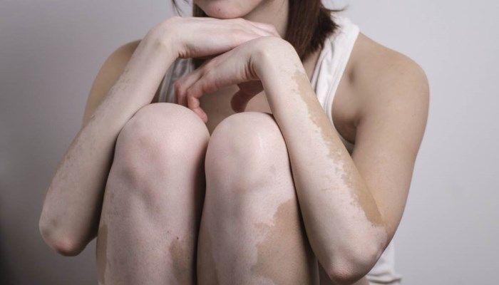 Витилиго - отсутствие меланина некоторых на участках кожи, в том числе и сосках