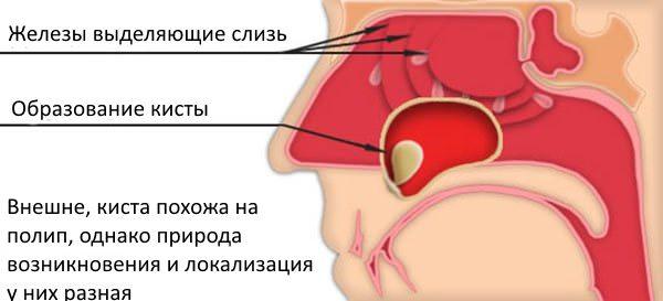 Киста в пазухе носа: симптомы, лечение и последствия