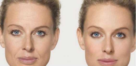 Лазерная биоревитализация лица до и после