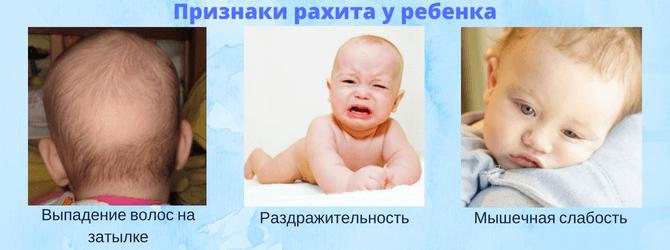 Признаки рахита у ребенка