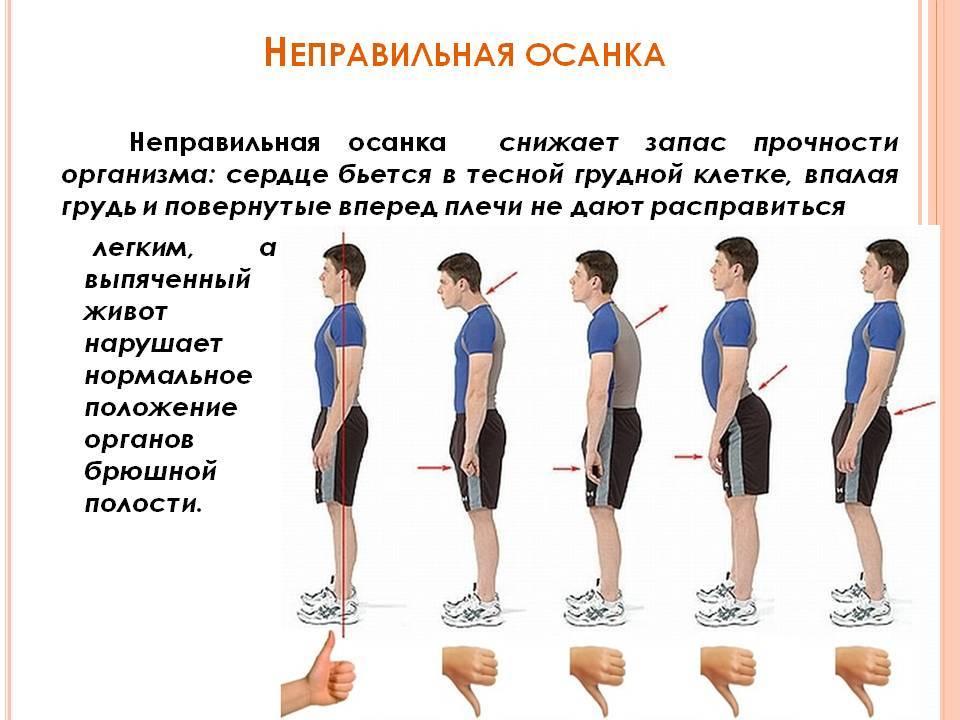 Причина боли в спине