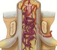 Сосудистая миелопатия: к чему приводят нарушения кровообращения в спинном мозге?