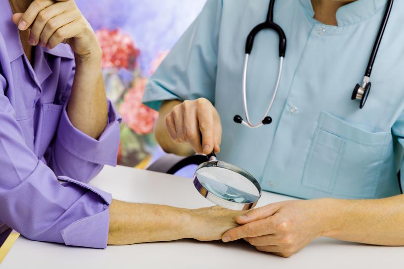 Выявление причин микоза кожи рук