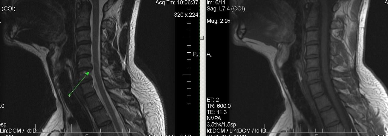 Дегенеративно-дистрофические изменения позвоночника: как вернуть эластичность межпозвонковым дискам?