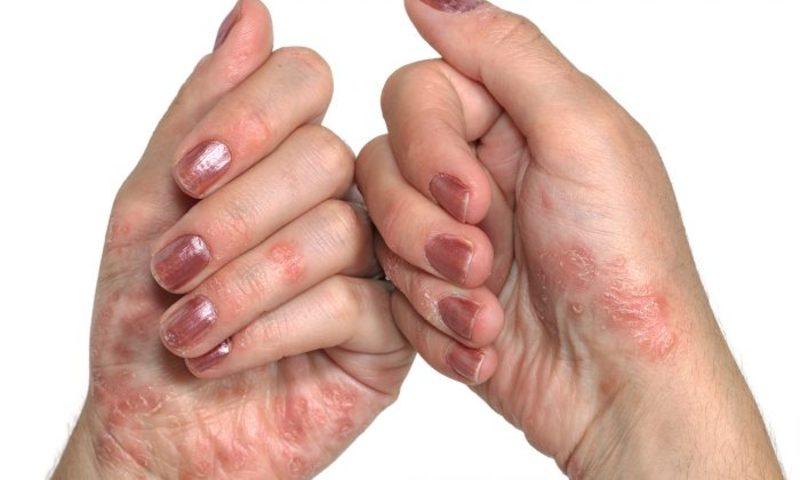 Как вылечить грибок пальцев рук