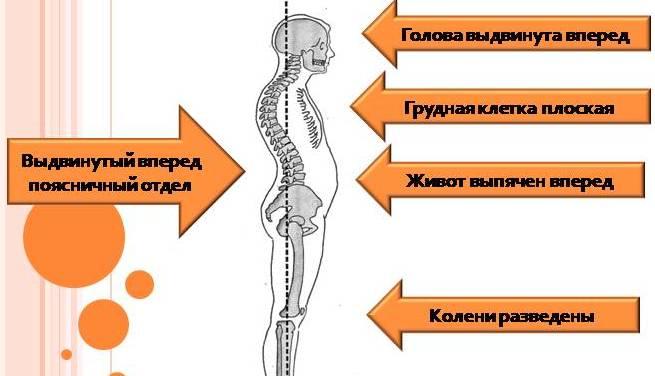 Причины развития нарушения физиологического лордоза и их признаки. Чем опасна патология?