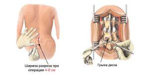 Опасная грыжа позвоночника поясничного отдела: как не упустить время и начать лечение на ранних стадиях?