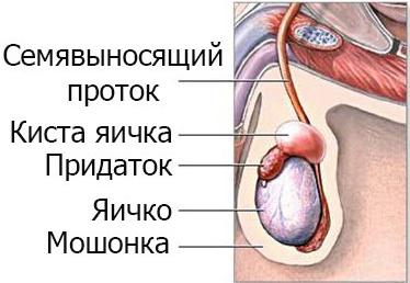 Последствия кисты в придатках левого и правого яичек у мужчин