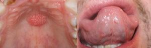 Симптомы и лечение папилломы во рту