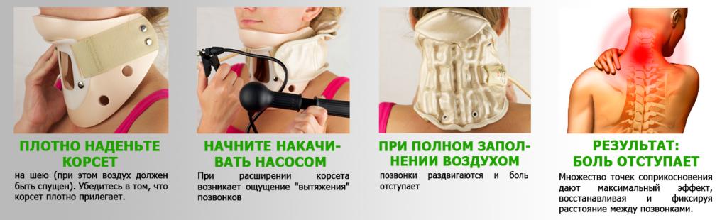 Обзор разных видов шейных корсетов при грыже шейного отдела