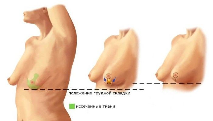 Разного размера грудь что делать с асимметрией молочной железы