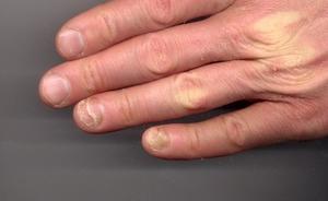 Методика лечения грибка пальцев рук