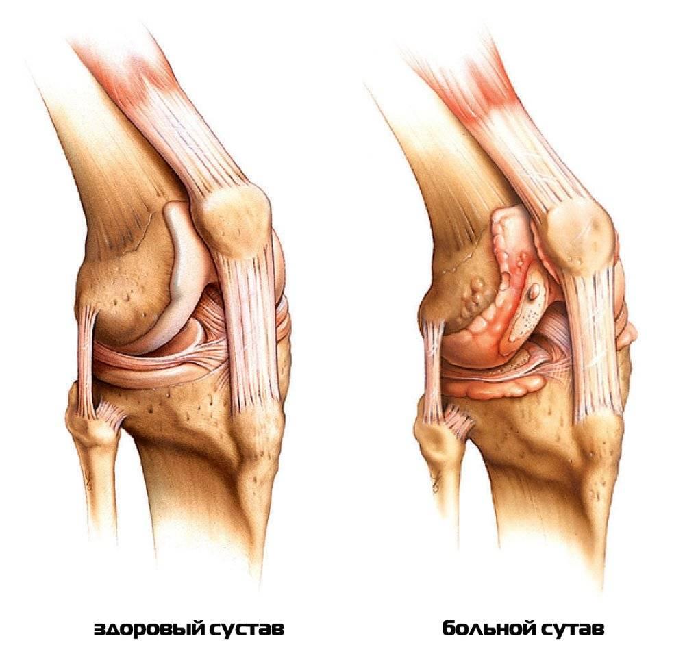 Пораженный коленный сустав