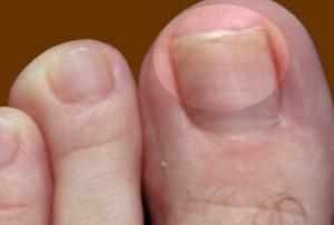 лечение микоза ногтей на ногах