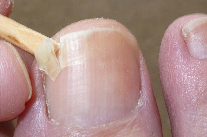 Борьба с микозом ногтей