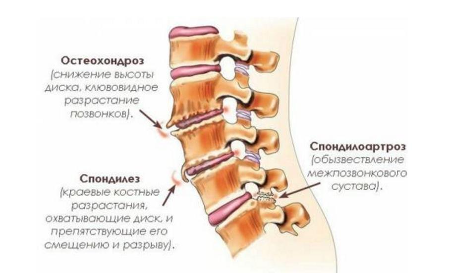 Заболевания шеи