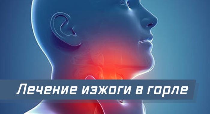 лечение изжоги в горле