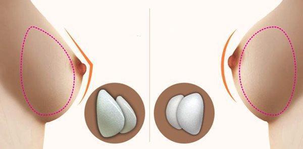 Аугментационная маммопластика