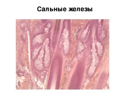 Строение сальной железы