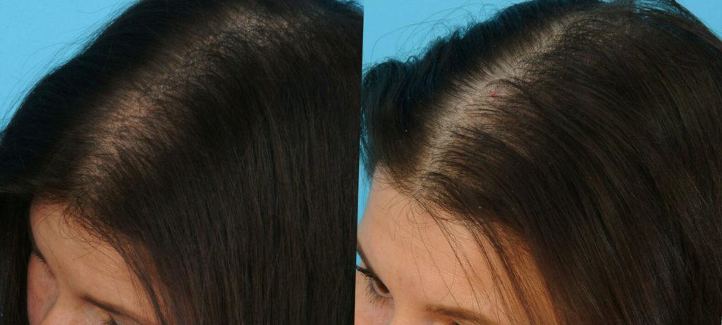 Плазмолифтинг головы для волос: Волшебная инъекция