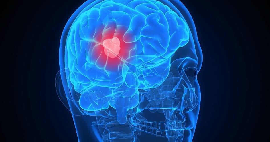 Какие последствия у кистозно-глиозных изменений в головном мозге