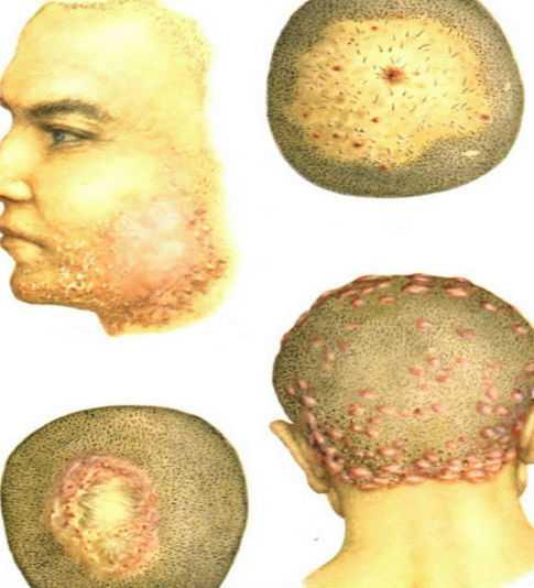 Пиодермия головы