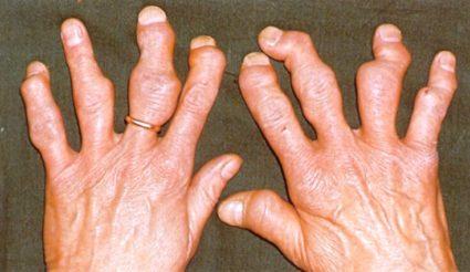 Стадии заболевания различаются степенью остроты