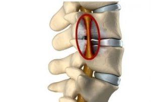 Спинномозговые аномалии: чем опасна миелопатия шейного отдела позвоночника?