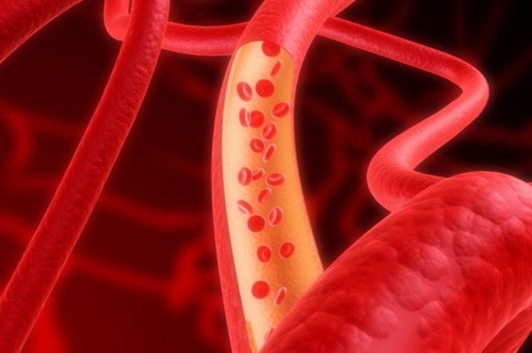 Недуги кровеносных сосудов чрезвычайно опасны