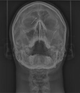 Фронтит на рентгене