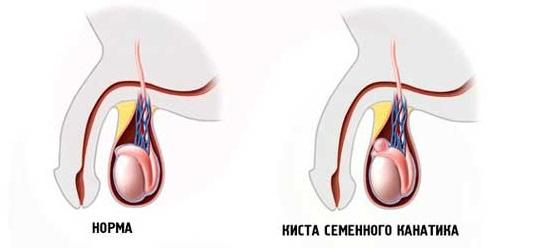 Причины развития кисты в семенном канатике у мальчика