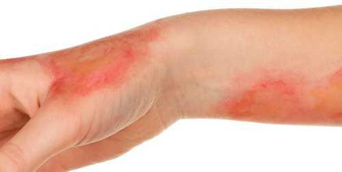 Что происходит с кожей при ожоге