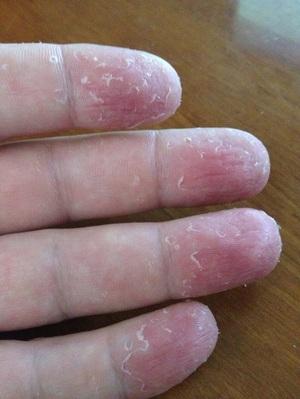 Признаки грибка пальцев рук