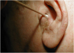 лечить фурункул в ухе