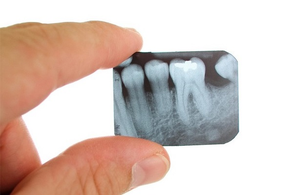 кариес между зубами 4