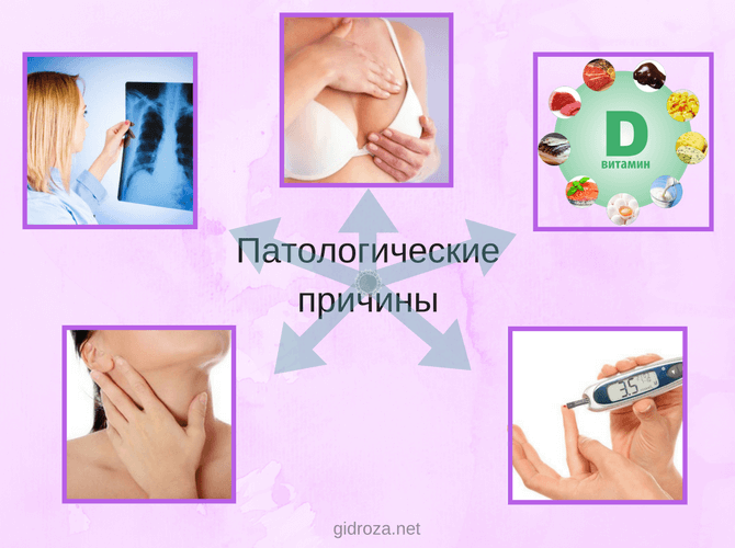 Патологические причины запаха пота