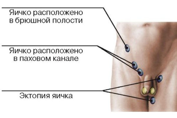 Что нужно знать про эктопию яичка