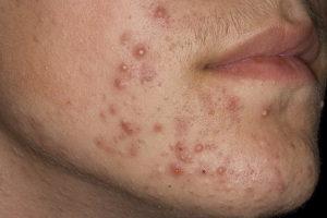 Каким должно быть лечение лечение угревой сыпи у женщин