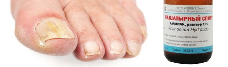 Как лечить грибок ногтей в домашних условиях