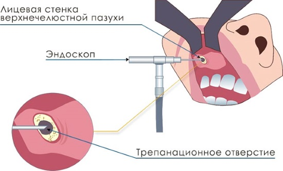 Как проводится удаление кисты верхнечелюстной пазухи