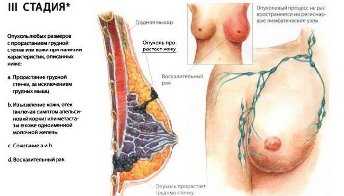 Симптомы 3 стадии РМЖ
