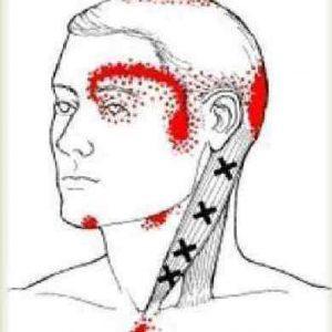 Дегенеративно-дистрофические изменения шейного отдела позвоночника: чем опасно отсутствие хрящевой ткани и деформация позвонков?