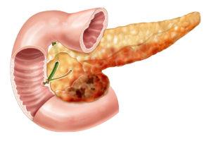 Можно ли есть мед при панкреатите поджелудочной железы