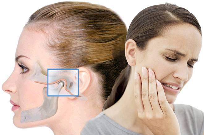 Боль в районе челюстного сустава