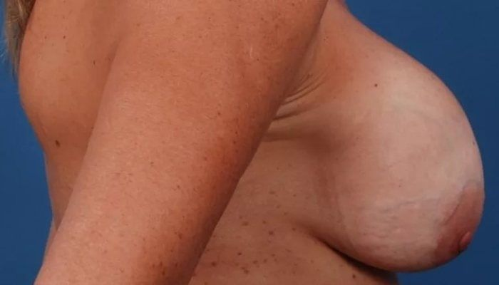 Деформирование груди