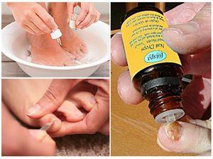 Как правильно наносить лекарство от грибка