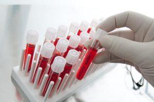 Методы удаления аденоидов у детей: какую анестезию выбрать?