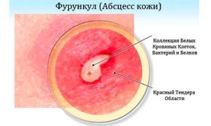 лечение рецидивирующего фурункулеза