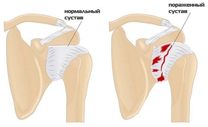 Контрактура плеча
