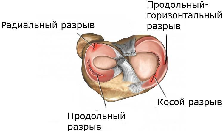 Травма хряща